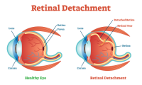 Retinal Detachment | medical illustration showing Retinal Detachment