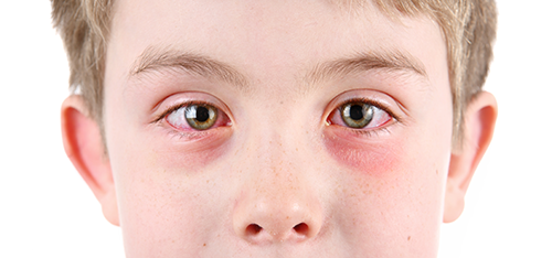 pink eye | conjunctivitis | photo of boy with pink eye