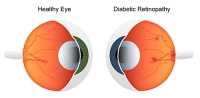 low vision | diagram showing a healthy eye vs. a diabetic eye