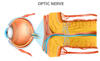 optic neuropathy | medical illustration of optic nerve