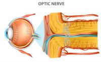 optic neuropathy | medical illustration of optic nerve